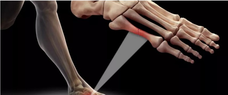 Створено цемент, який здатний до самовідновлення для загоєння кісток