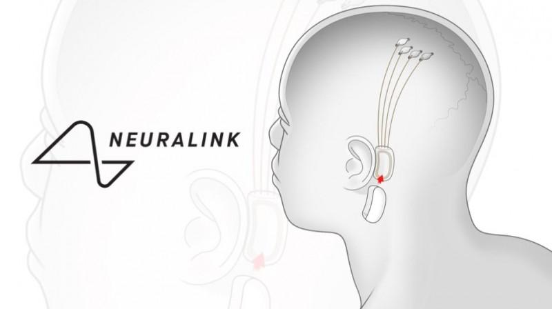 Ілон Маск розповів про нові можливості мозкових чіпів Neuralink